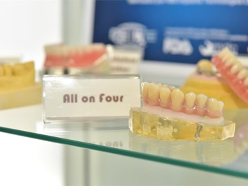 Implantes dentales All on Four ¿Los conoces?